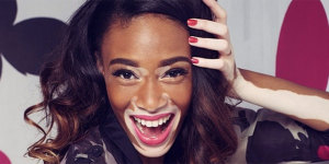 nrm_1408008896-winnie-harlow-antm-vitiligo