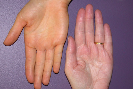 """People with Darker Skin Types More Likely to Have Pigment """"Spots"""" on Palms and Soles"""