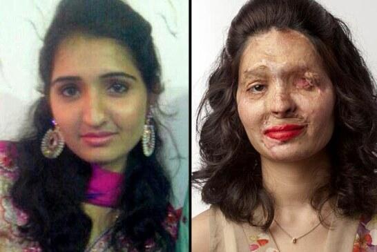 Una mujer atacada con ácido desfilará en la NY Fashion Week